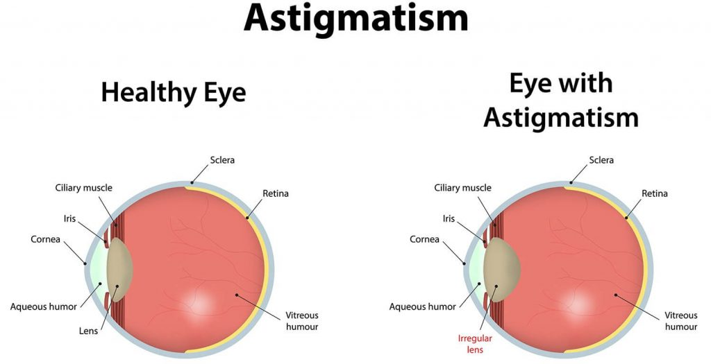 Astigmatism and its correction lenses | Blog - Buy Contact Lenses in pakistan @ lenspk.com